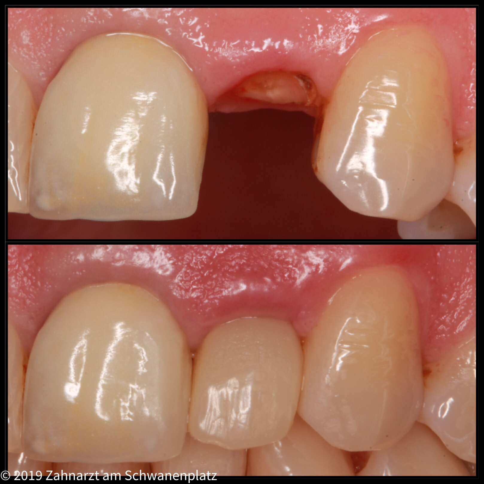 Zahnfullung
